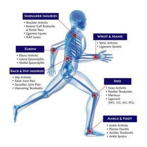 các bệnh đau nhức xương khớp thường gặp